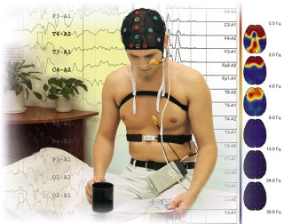 holter study
