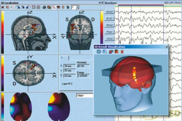 software 3D Encephalan EEG